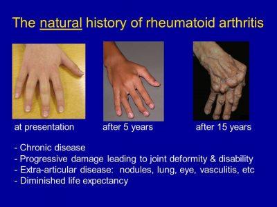Best treatment options for rheumatoid arthritis