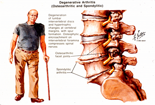 arthritis in the spine