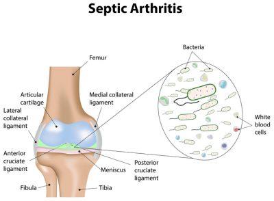 septic arthritis icd 10