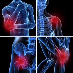 bursitis symptoms