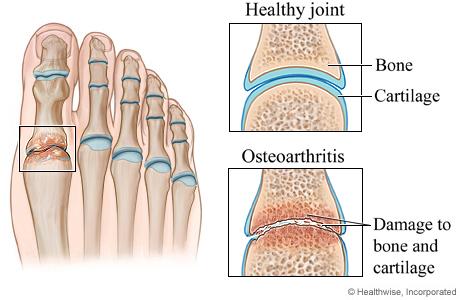 osteoarthritis in feet