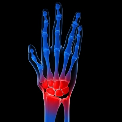 arthritis in wrist treatment