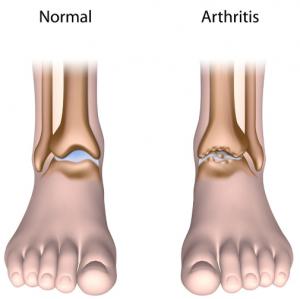 arthritis in feet pictures