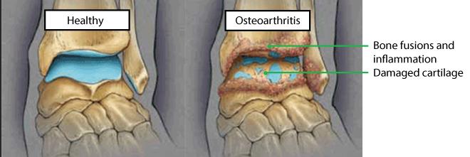 osteoarthritis in ankles