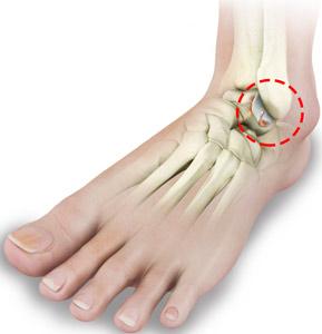 Rheumatoid Arthritis Ankles
