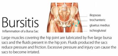 cause of bursitis