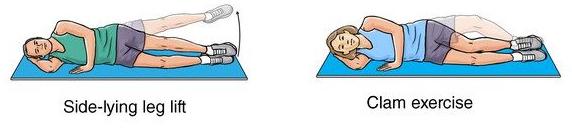 exercises for trochanteric bursitis