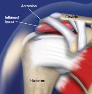 Bursitis of the Shoulder