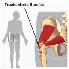 greater trochanteric bursitis